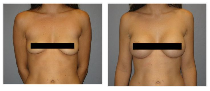 Breast augumentation b cup are not