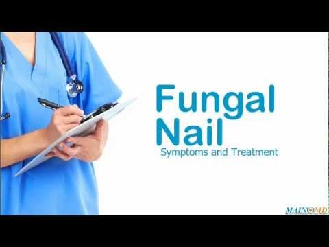 Fungal nail treatment — Finding the right information about fungal nail treatment & symptoms, is crucial to managing fungal nail. Learn more about the best current treatment for you.