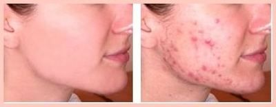 """""""Pimples On Chin And Jawline"""" How To Get Rid Of Them Fast & Safely - PLUS 5 ACNE REMOVING TIPS YOU WISH YOU KNEW EARLIER.  http://myacnelife.com/pimples-on-chin-how-to-get-rid-of-them-fast"""