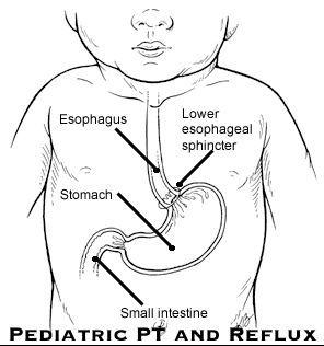 Reflux in children Pediatric PT treatment ideas