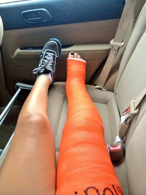 Casts Amp Toes Full Leg Cast Casts Pinterest Leg Cast