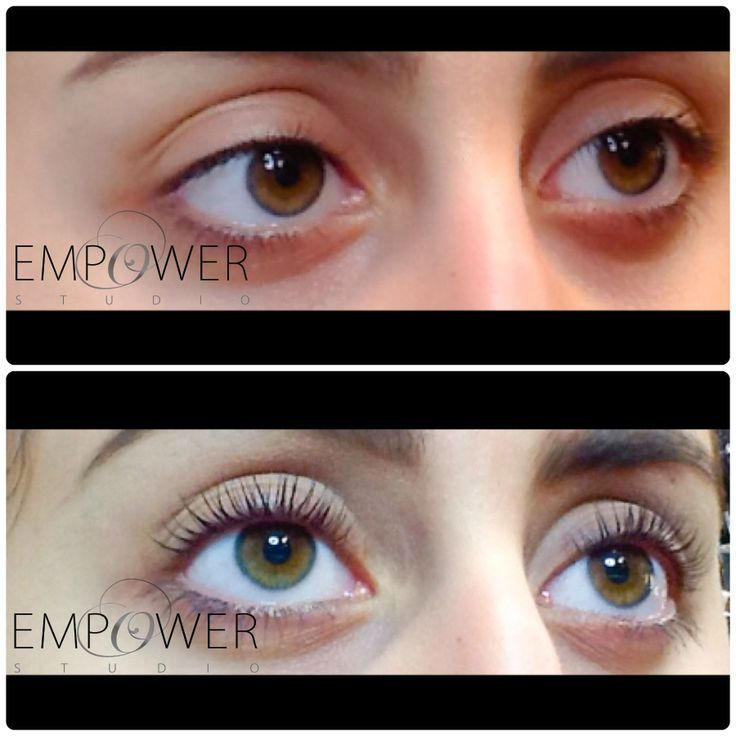 Brand new Yumi lashes. Before and After shots really show the difference. www.empowerstudio.ie #lashes