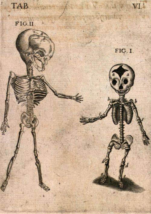 Kaspar Bauhin (https://www.pinterest.com/pin/287386019949818463) - TAB VI. Skeletons of a child (FIG. II) and an infant (FIG. I), from Theatrum Anatomicum, 1605.