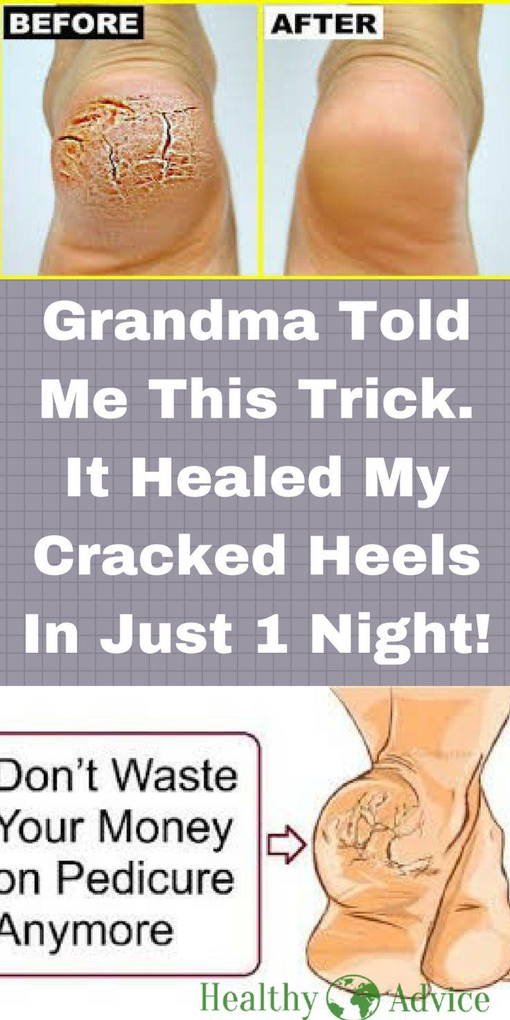 cracked heels | cracked heels remedy | cracked heels remedies | cracked heels remedy overnight | cracked heels diy | dry cracked feet | cracked heels treatment | dry cracked heels | cracked heel | cracked feet |