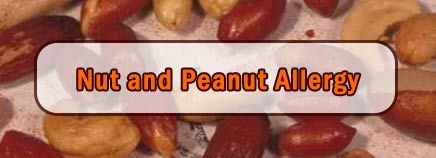 All you need to know about nut and peanut allergies! #Allergies #PeanutAllergy #NutAllergy