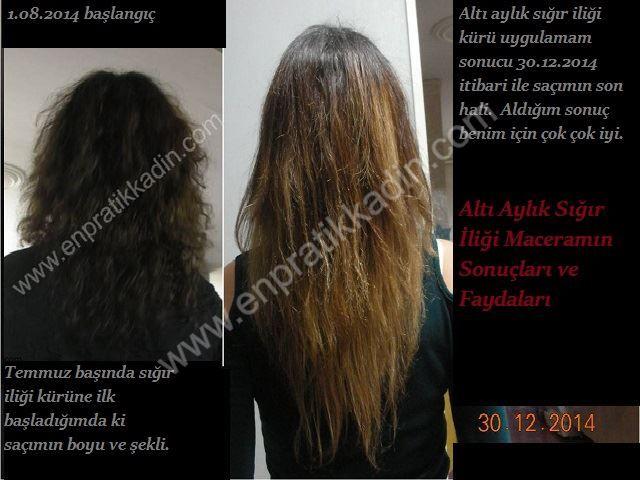Altı aylık düzenli uygulama sonrası, sığır iliğinin (kemik iliği) saçıma faydaları <div...