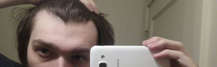 Is This a Widows Peak Or Receding Hairline? http://ift.tt/2vQW1tG