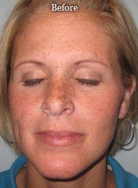 Photo Facials = No more freackles! Love this!
