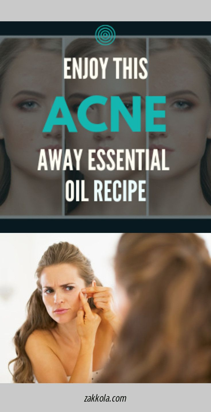 Simply click the link to learn more acne. Check t…
