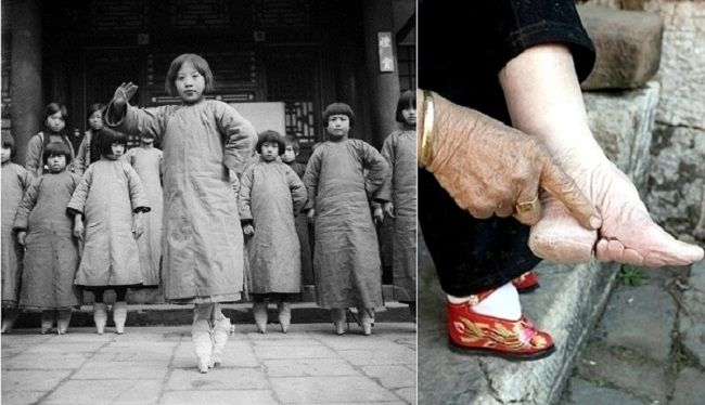 10 Most Bizarre Shoes In History Of Fashion Shoes