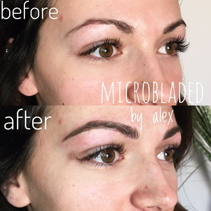 Microblading may give anybody their dream eyebrows! Comply with #microbladedbyalex on …