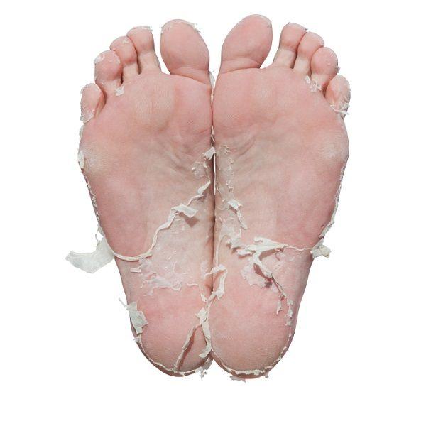 Hoezo droge voeten! Verzorg ze met een crème passend bij het huidtype. Vraag om informatie, zie hiervoor mijn website www.neefjespedicure.nl