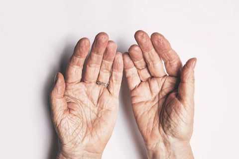 Los nódulos reumatoides