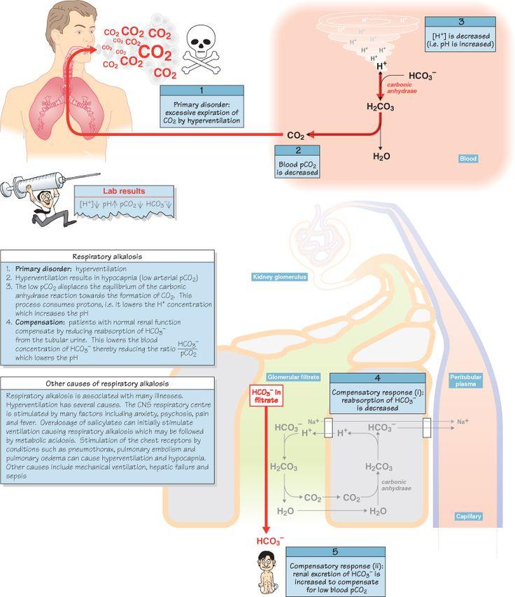 Respiratory Alkalosis NCLEX Pinterest Reading