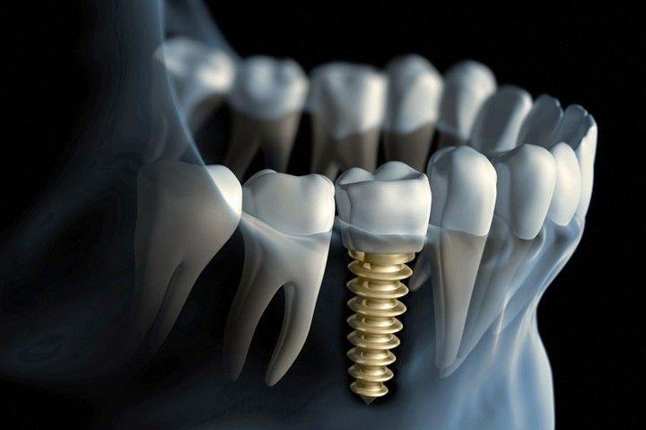 Implantáty v Schill Dental
