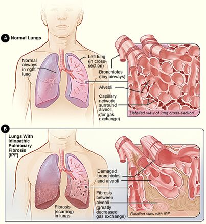 What is Pulmonary Fibrosis | Pulmonary Fibrosis News | Scoop.it