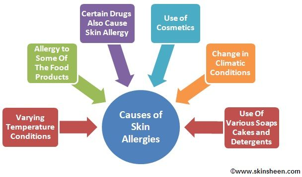 Skin Allergy Remedies ~ Causes of Skin Allergies