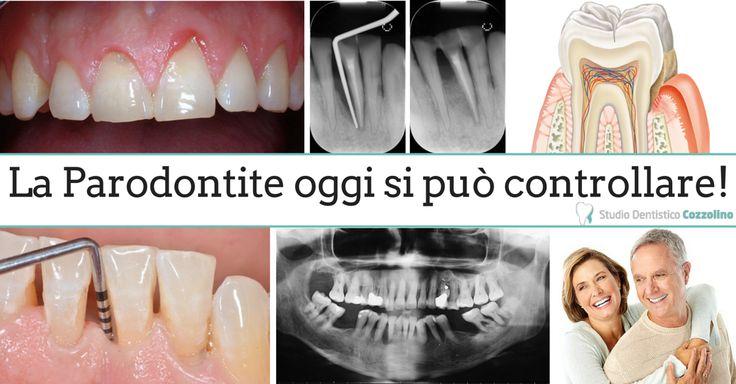 La Parodontologia è quella branca dell'odontoiatria che si occupa della prevenzione, della diagnosi e della cura delle patologie a carico dei tessuti di sostegno del dente. Queste patologie infiammatorie e degenerative, comunemente denominate piorrea o parodontite, se lasciate incurate, portano alla successiva distruzione dei tessuti circostanti i denti. Anche nei casi più gravi oggi con un adeguato trattamento e con un adeguato mantenimento, LA PARODONTITE SI PUO' STABILIZZARE E CONTROLLARE