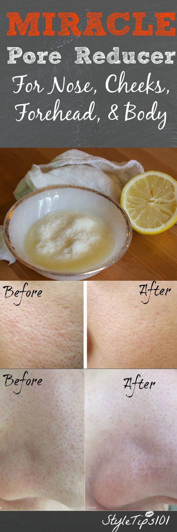 DIY Pore Reducer- 1t bkng soda, .5 t lemon juice, 1 T sugar, .5 T olive oil. Mix & apply 15-20mins. Rinse, pat dry, moisturize.