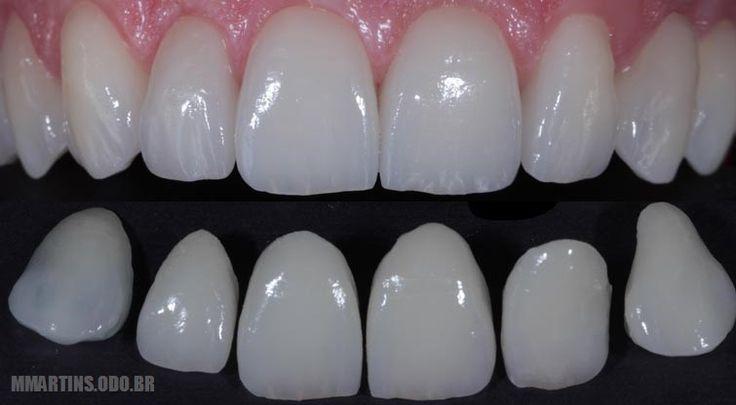 lente de contato dental - Pesquisa Google
