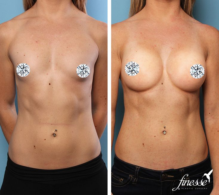 Breast Augmentation At Finesse Plastic Surgery Age 27 -6949