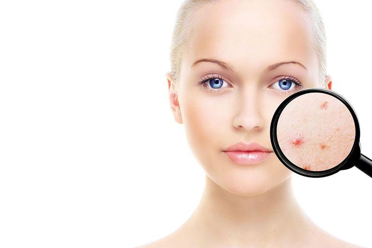 Centrum plastickej&estetickej chirurgie - Odstraňovanie výrastkov, bradavíc