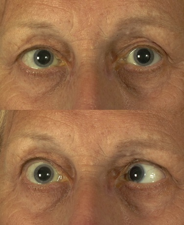 Sixth nerve palsy associated with idiopathic intracranial ...