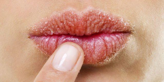 Labbra screpolate? Queste 3 ricette fai-da-te funzionano davvero -cosmopolitan.it