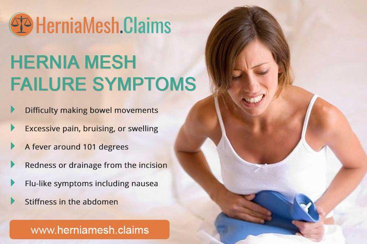 Pin By Hernia Mesh Claims On Abdominal Hernia Mesh