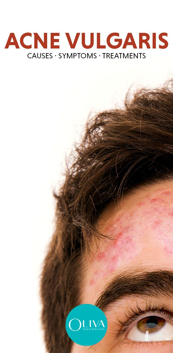 Acne Vulgaris Meaning And Medical Definition Acne Vulgaris Acne Vulgaris Treatment Acne