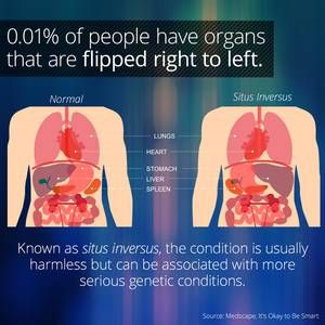 I learned something cool on the @curiositydotcom app: People With Situs Inversus Have Flipped Organs