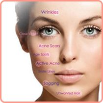 Fractional co2 treatment is the latest innovation in laser technology. It removes fractions of the skin hence has a slow recovery period resulting in smooth and