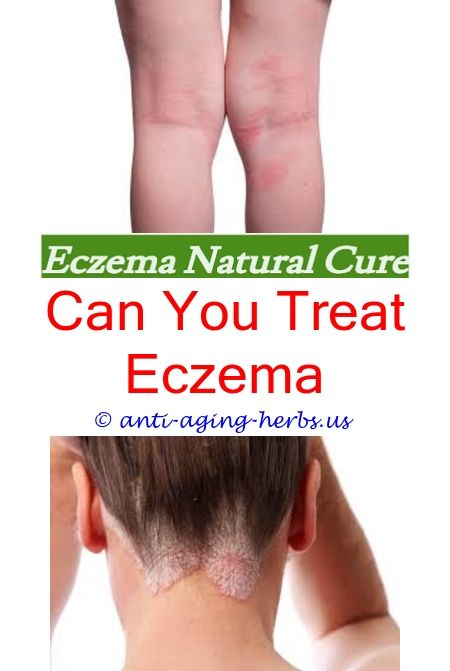 Eczema On Elbows Cure Eurisa Eczema Creamseborrheic eczema hair
