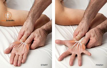 myofascial technique for flexor retinaculum PinpointBodywork.com  The leading edge, interactive resource for massage therapists and bodyworkers. Pinpoint Bodywork offers evidence-based continuing education courses and practical strategies designed to catapult your practice forward.
