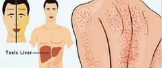 15 sinais de que seu fígado está doente - e como resolver o problema…