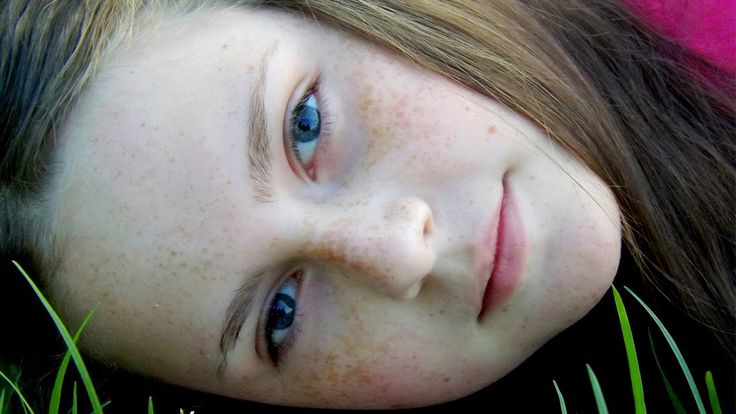 How to Get Rid of #Freckles | How to #Get #Rid of Freckles #fast