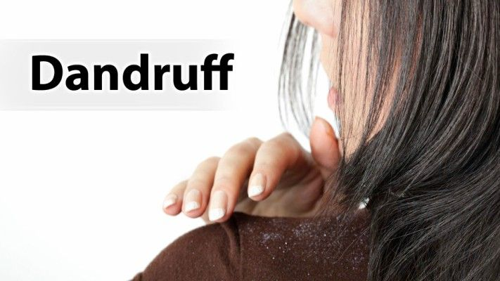 Dandruff is one of the most disturbing head skin problems that often appear. It is basically caused by the presence of the scalp disorder. Although it sounds strange, this condition is pretty common to happen. You will only need to make dandruff home remedies in order to reduce the dry skin around your head, the...Read More