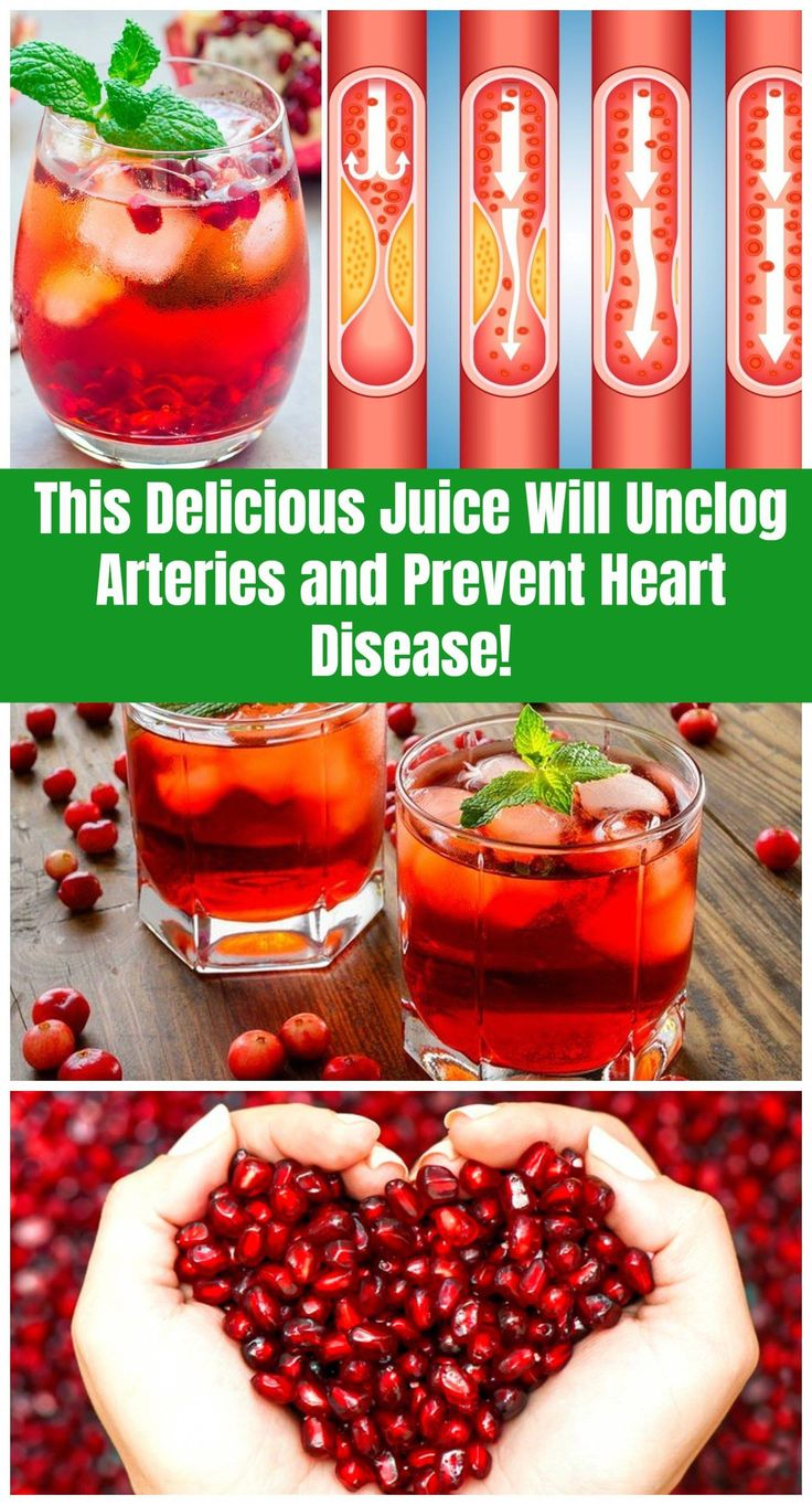 This Delicious Juice Will Unclog Arteries and Prevent
