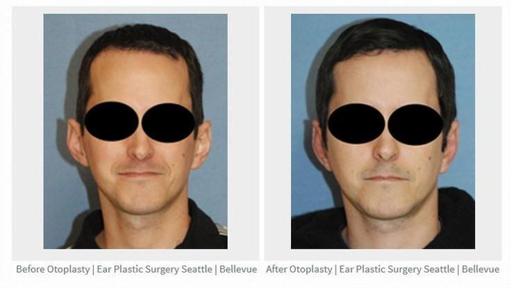 Bellevue  Ear Plastic Surgery, Plastic Surgery, Ear-6329
