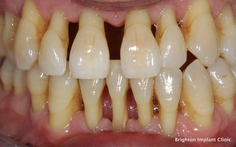 Glib Stages Of Tooth Decay #oralhealthproblems #StagesOfToothDecay  #mundpflege #oral care