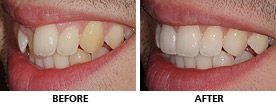 Space was first created with an expander then an Inman Aligner was used to align the teeth. The transformation was completed with whitening and composite bonding and this man was delighted with the outcome. http://www.praisdental.co.uk/straightening/