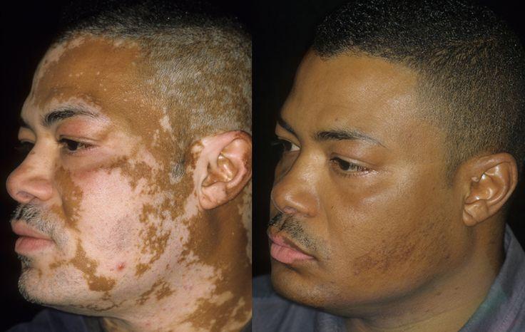 Vitiligo Treatments Select The Best Skin Care Treatment