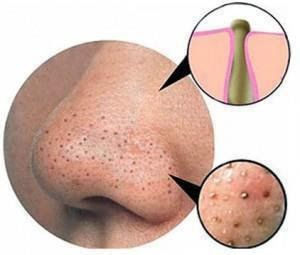 """A Bushel Basket"": HOW TO GET RID OF BLACKHEADS AND WHITEHEADS - DIY ACNE REMEDIES"