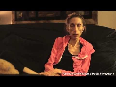 Extreem anorexische vrouw doet wanhopige oproep om haar leven te redden - HLN.be