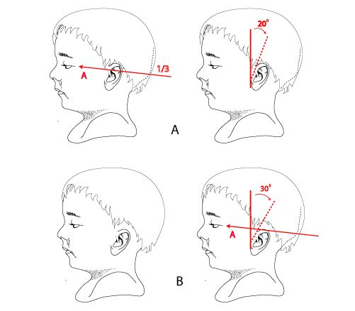 Facial cleft low set ears