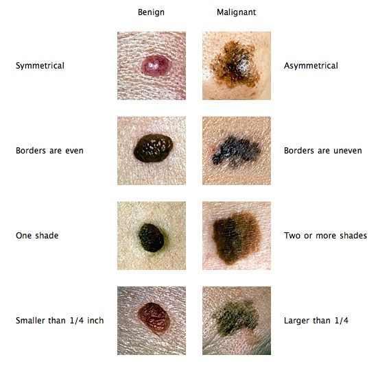 Home Remedy For Black Warts Removal In Dogs