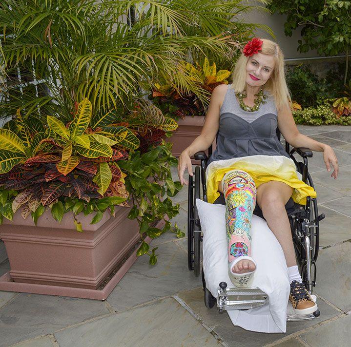 Creative, Artistic, Custom Designed Leg Cast. And If