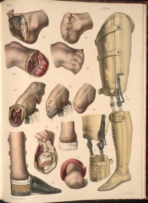 Amputation of foot and leg with prostheses examples.