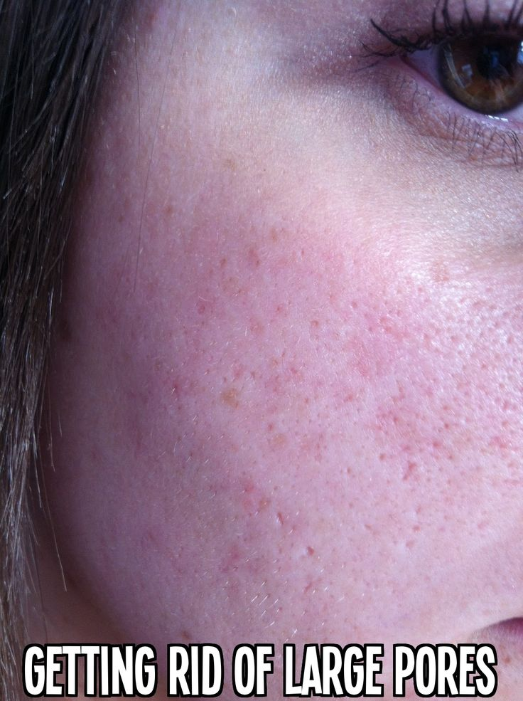 Getting Rid of Large Pores #acne #beauty #skin