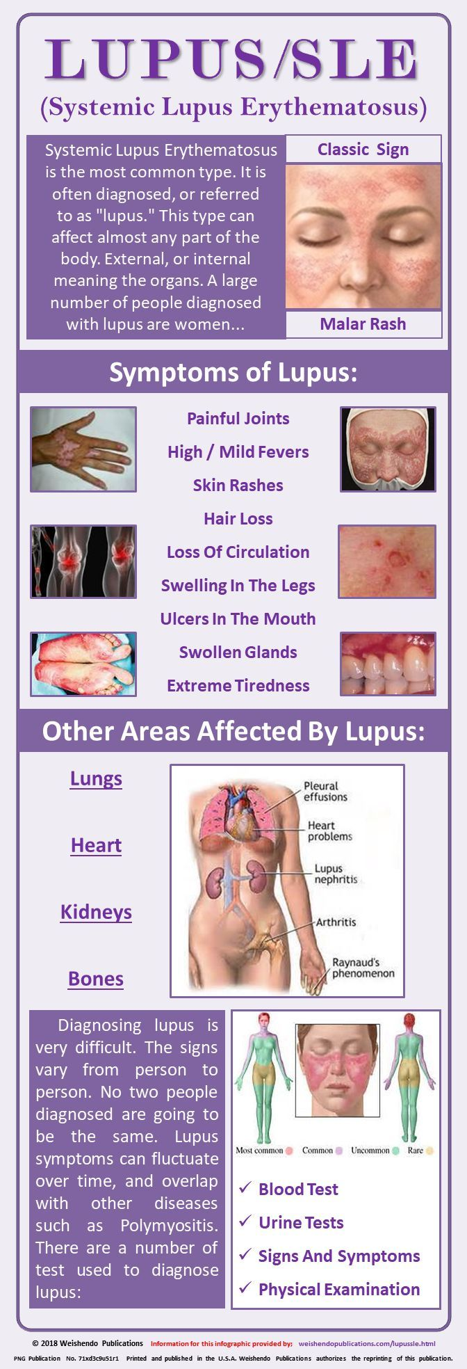 Systemic Lupus - Systemic lupus erythematosus is the most ...